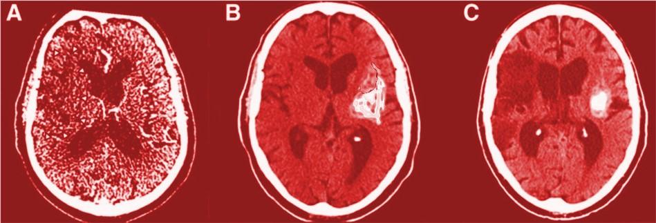 Prześwietlenie uszkodzonego mózgu